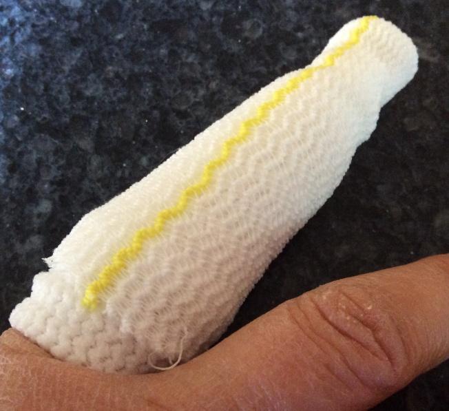 Franken-finger